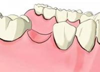 修复缺失牙齿有哪些方法?